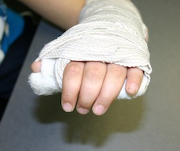 how to tell broken finger tip